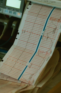 Ordination Dr. Kamaleyan-Schmied EKG
